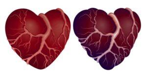 老年性心瓣膜病应